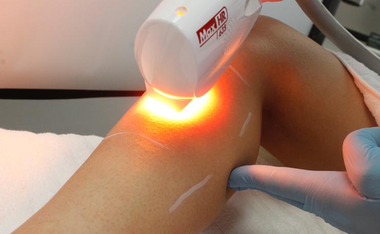 ipl laser services